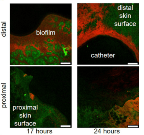 Skin surface autofluorescence is green, RP437/pRSH103 E. coli is red, and the black region is insertion site of catheter. Images for each timepoint were taken of sections around the catheter, as seen by the curvature where the biopsy punch was made. Distal side is the epidermis and proximal side is mostly hypodermis and associated fat cells.