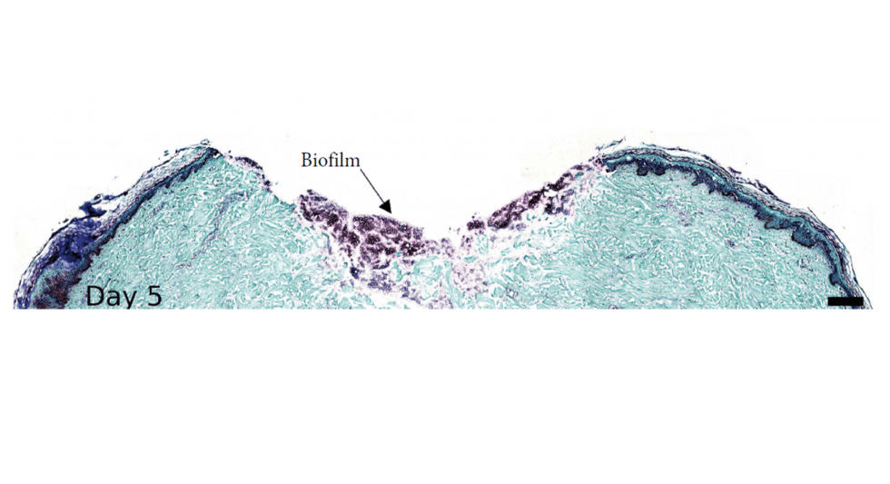 A wounded ex vivo human skin model to study microbial biofilm development and anti-biofilm therapeutics.